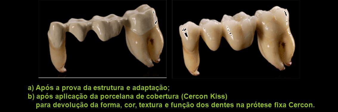 a) Após a prova da estrutura e adaptação;