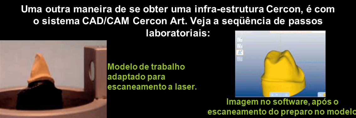 Modelo de trabalho. adaptado para. escaneamento a laser.