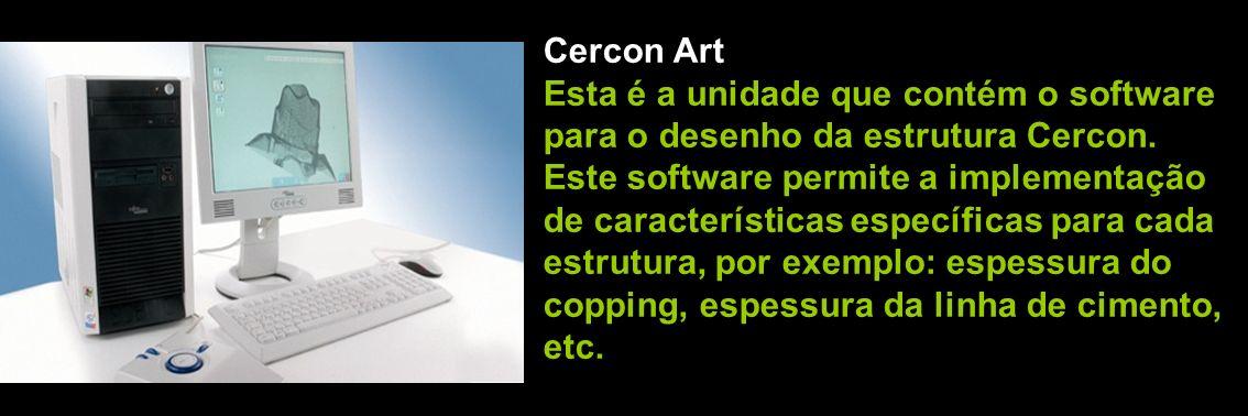 Cercon ArtEsta é a unidade que contém o software. para o desenho da estrutura Cercon. Este software permite a implementação.