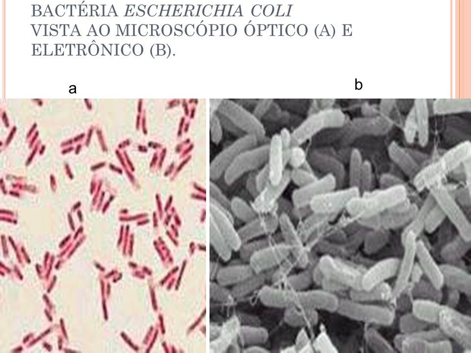BACTÉRIA ESCHERICHIA COLI VISTA AO MICROSCÓPIO ÓPTICO (A) E ELETRÔNICO (B).