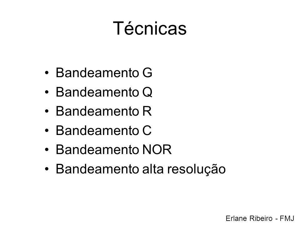 Técnicas Bandeamento G Bandeamento Q Bandeamento R Bandeamento C