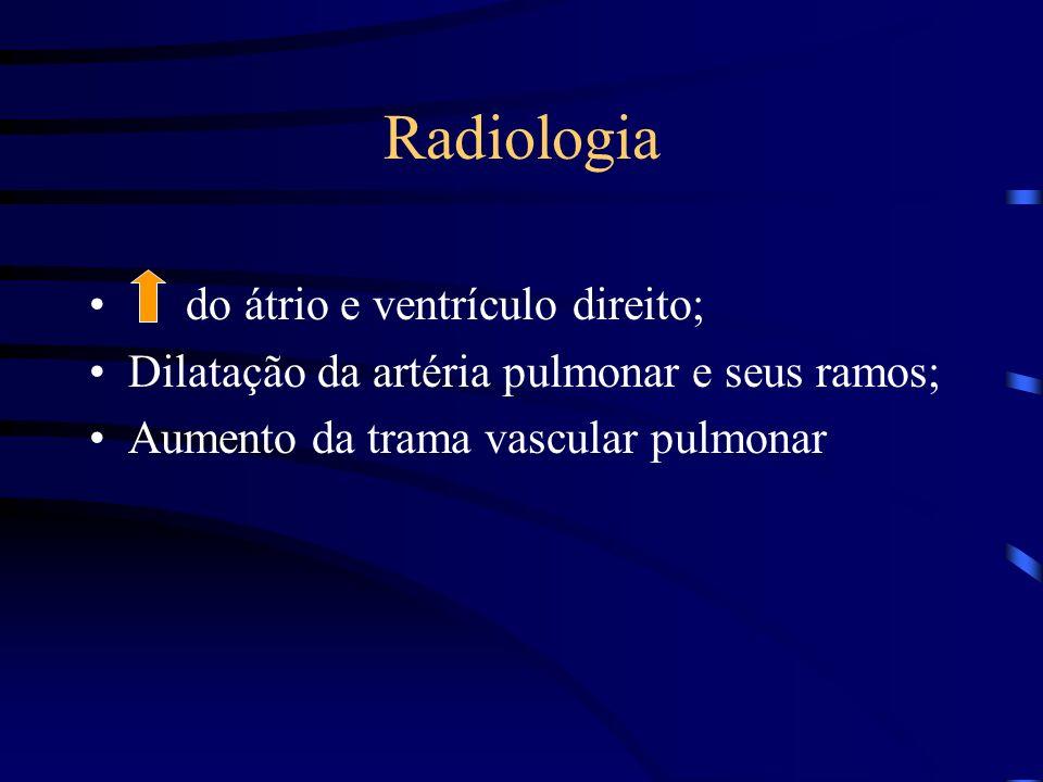 Radiologia do átrio e ventrículo direito;