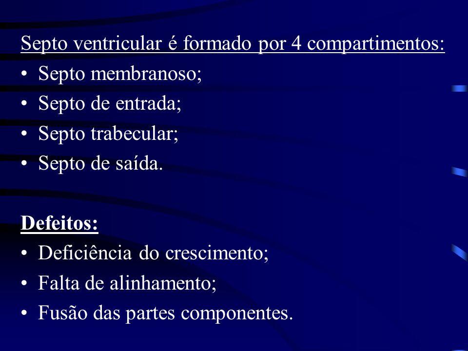 Septo ventricular é formado por 4 compartimentos: