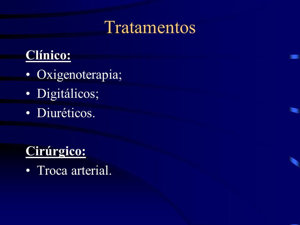 Tratamentos Clínico: Oxigenoterapia; Digitálicos; Diuréticos.