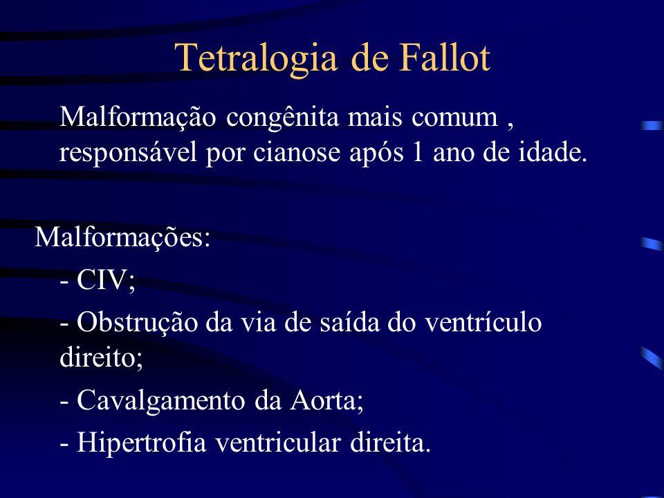 Tetralogia de Fallot Malformação congênita mais comum , responsável por cianose após 1 ano de idade.