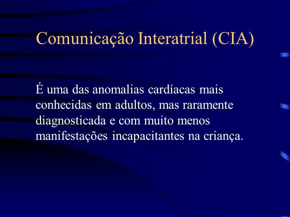 Comunicação Interatrial (CIA)