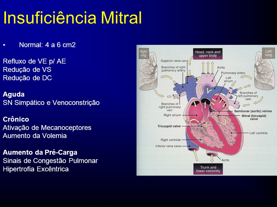 Insuficiência Mitral Normal: 4 a 6 cm2 Refluxo de VE p/ AE