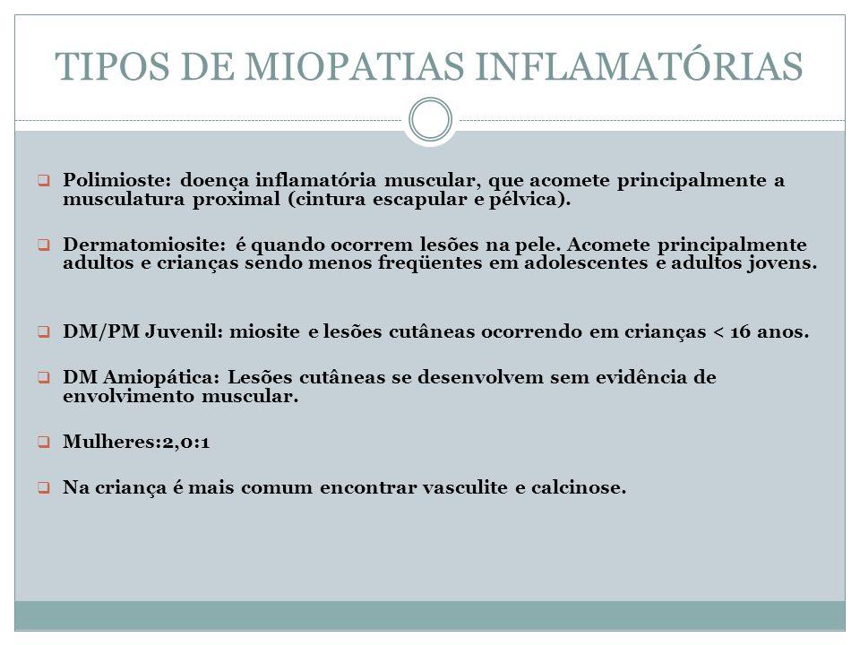 TIPOS DE MIOPATIAS INFLAMATÓRIAS