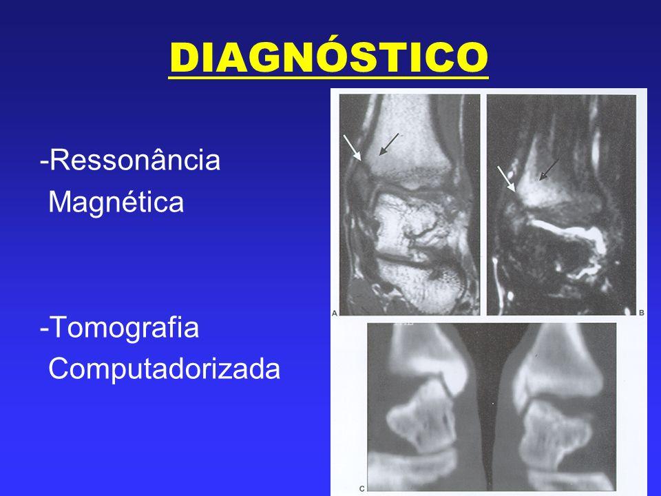 DIAGNÓSTICO Ressonância Magnética Tomografia Computadorizada
