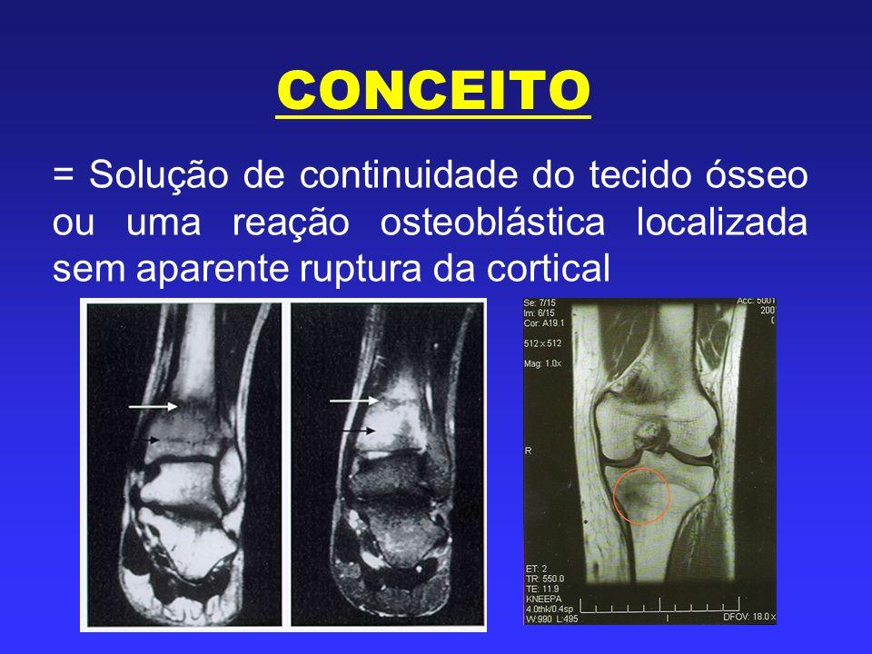 CONCEITO = Solução de continuidade do tecido ósseo ou uma reação osteoblástica localizada sem aparente ruptura da cortical.