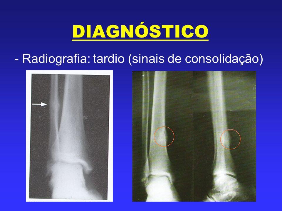 DIAGNÓSTICO - Radiografia: tardio (sinais de consolidação)