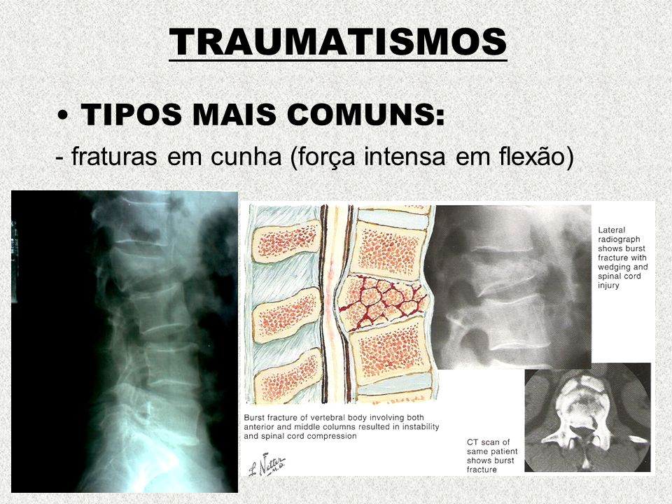 TRAUMATISMOS TIPOS MAIS COMUNS: