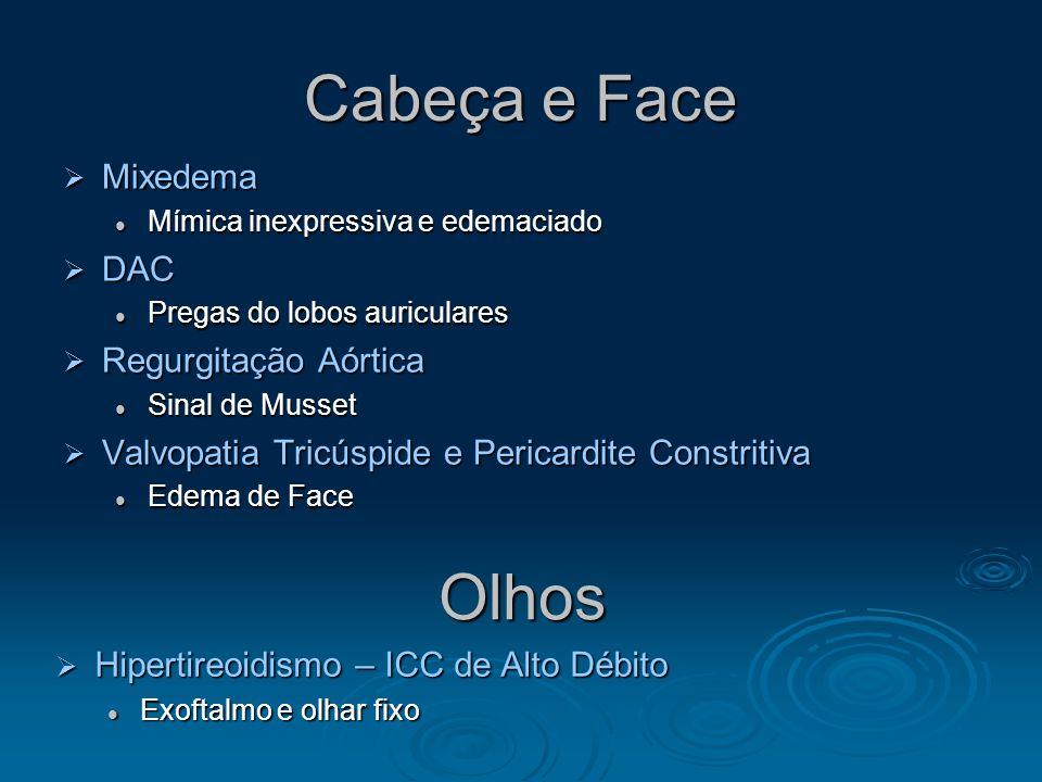 Cabeça e Face Olhos Mixedema DAC Regurgitação Aórtica