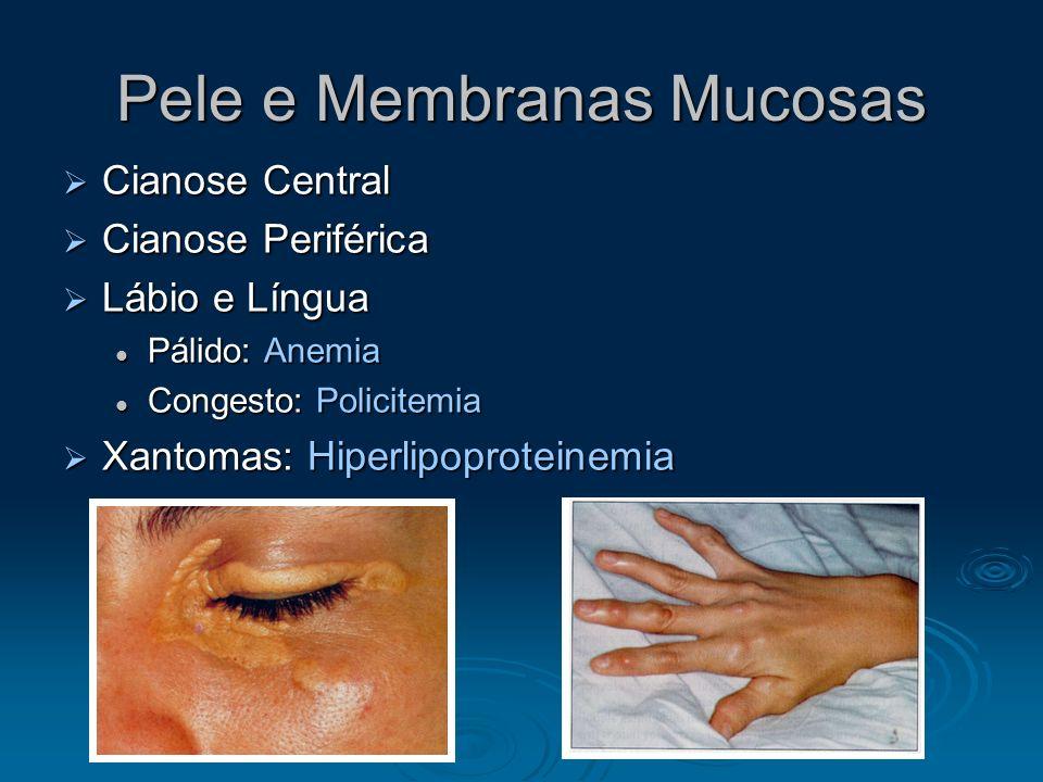 Pele e Membranas Mucosas