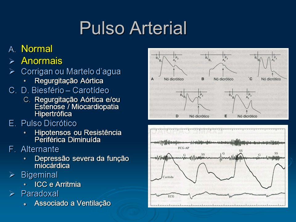 Pulso Arterial Normal Anormais Corrigan ou Martelo d'agua