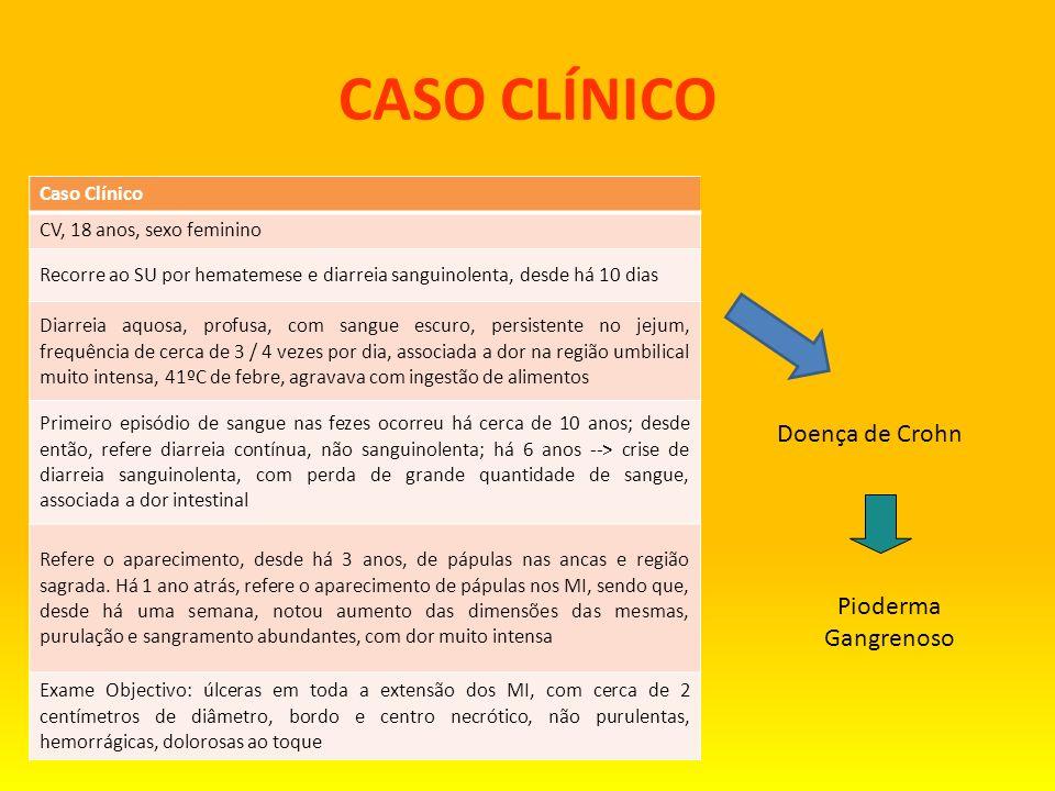 CASO CLÍNICO Doença de Crohn Pioderma Gangrenoso Caso Clínico