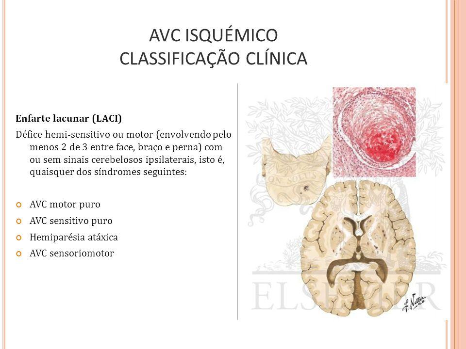 AVC ISQUÉMICO CLASSIFICAÇÃO CLÍNICA
