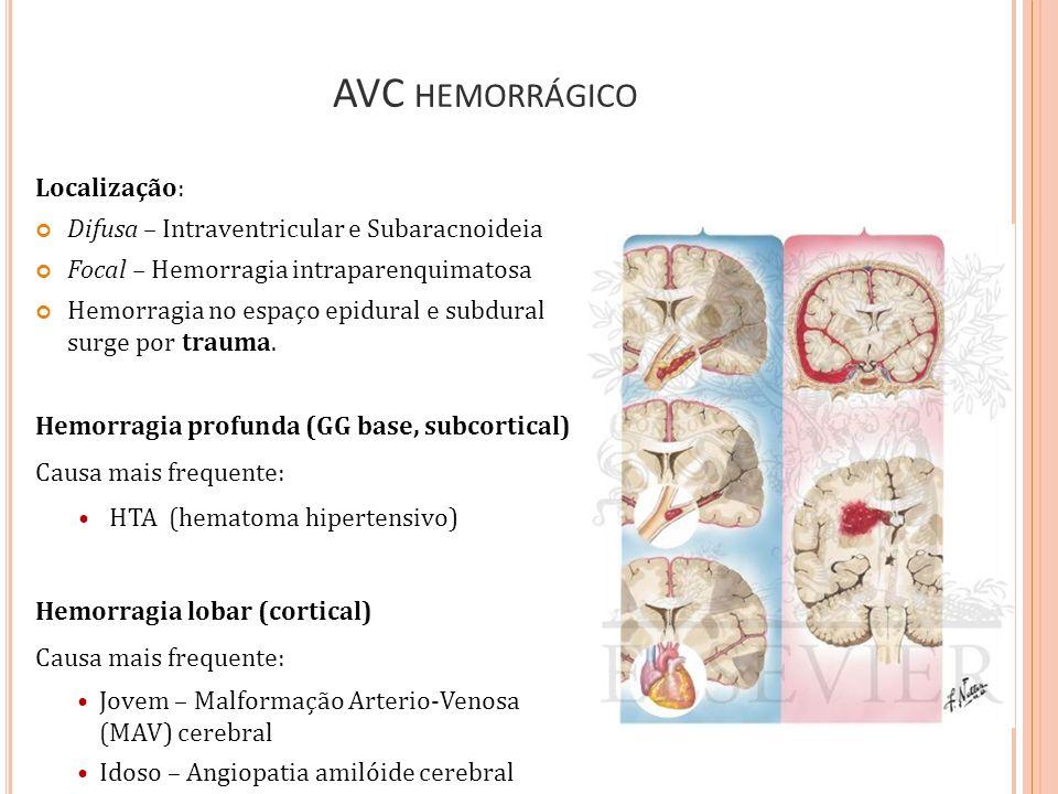 AVC hemorrágico Localização: