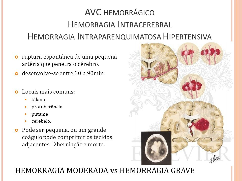 HEMORRAGIA MODERADA vs HEMORRAGIA GRAVE
