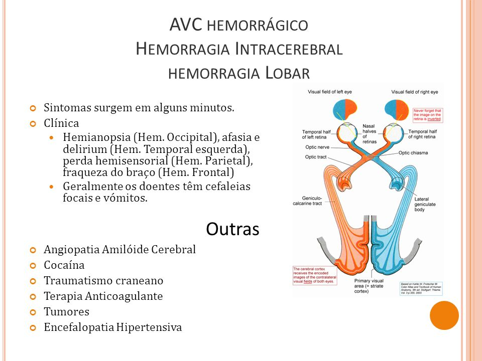 AVC hemorrágico Hemorragia Intracerebral hemorragia Lobar