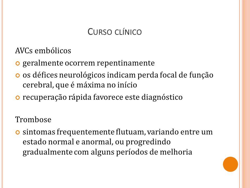 Curso clínico AVCs embólicos geralmente ocorrem repentinamente