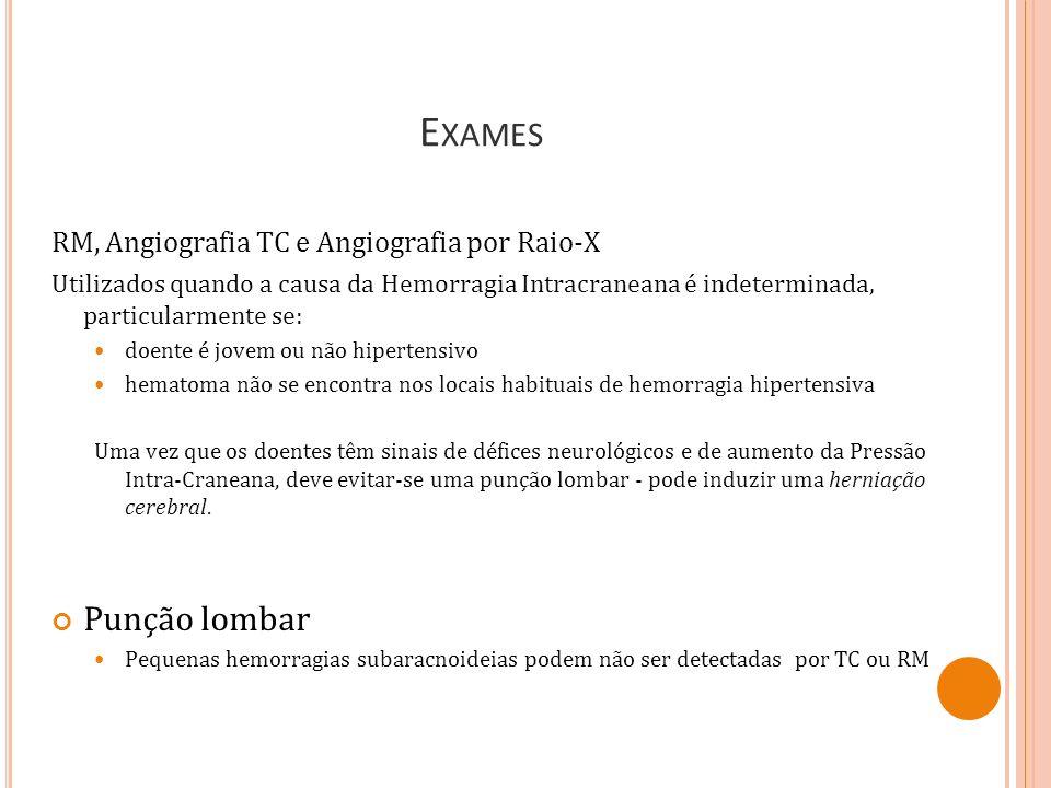 Exames Punção lombar RM, Angiografia TC e Angiografia por Raio-X