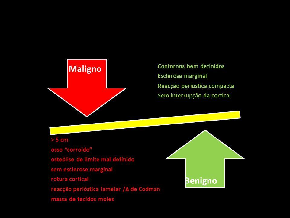 Maligno Benigno > 5 cm osso corroido Contornos bem definidos