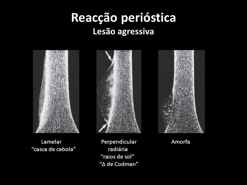 Reacção perióstica Lesão agressiva