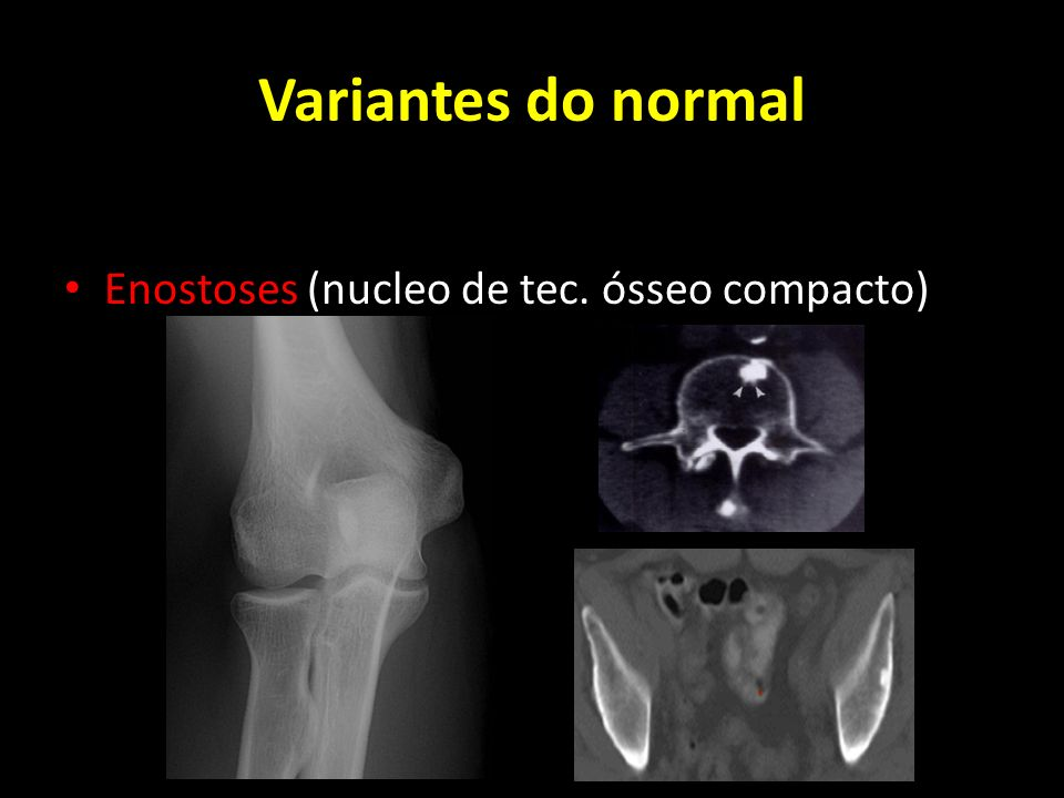 Variantes do normal Enostoses (nucleo de tec. ósseo compacto)
