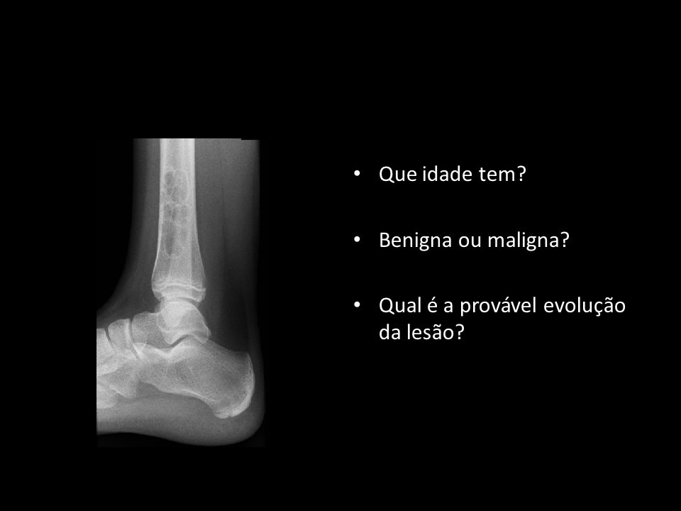 Qual é a provável evolução da lesão