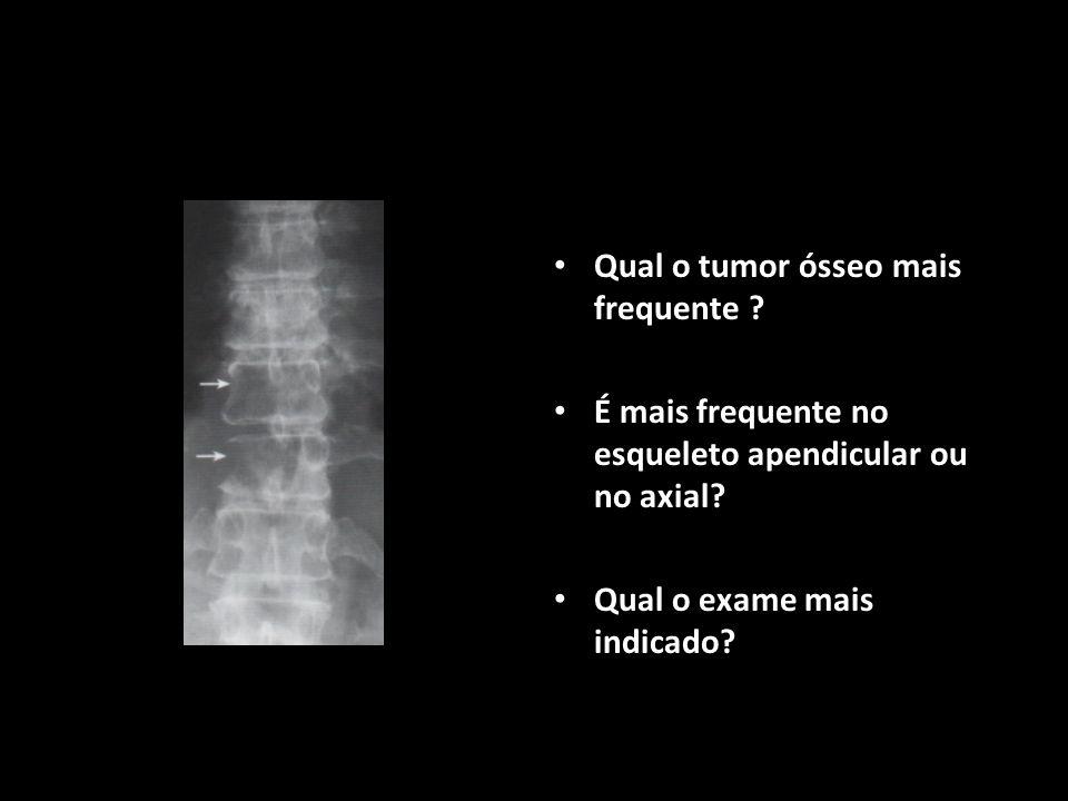 Qual o tumor ósseo mais frequente