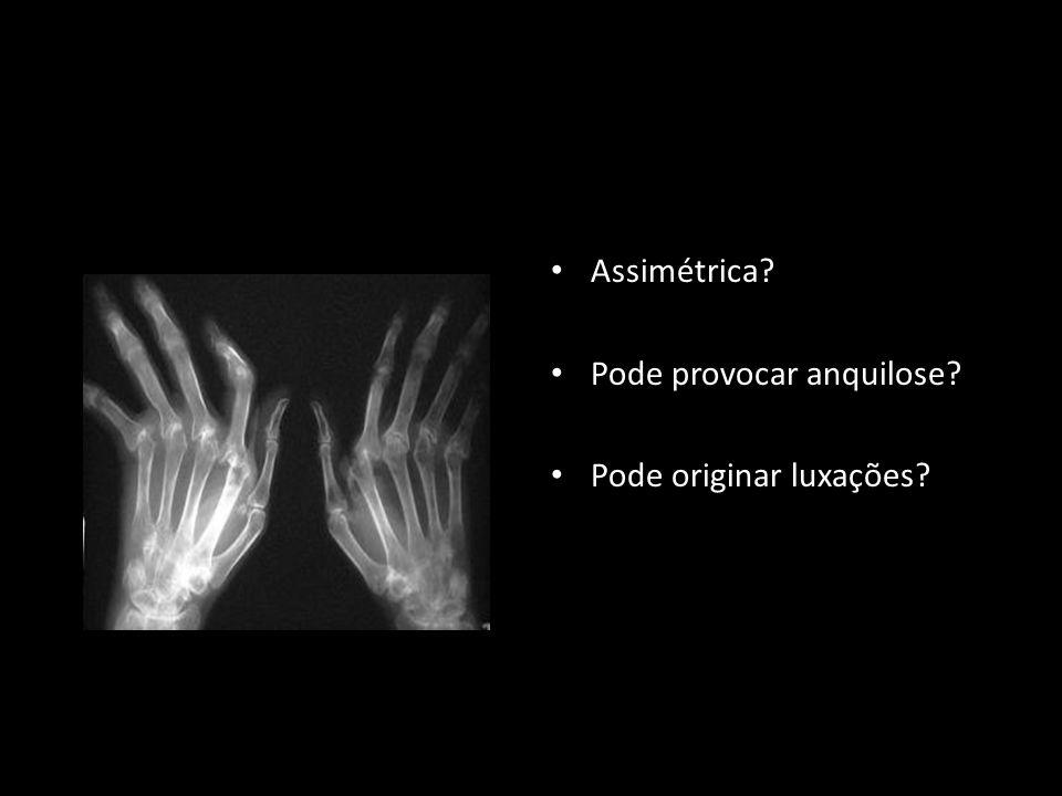Assimétrica Pode provocar anquilose Pode originar luxações