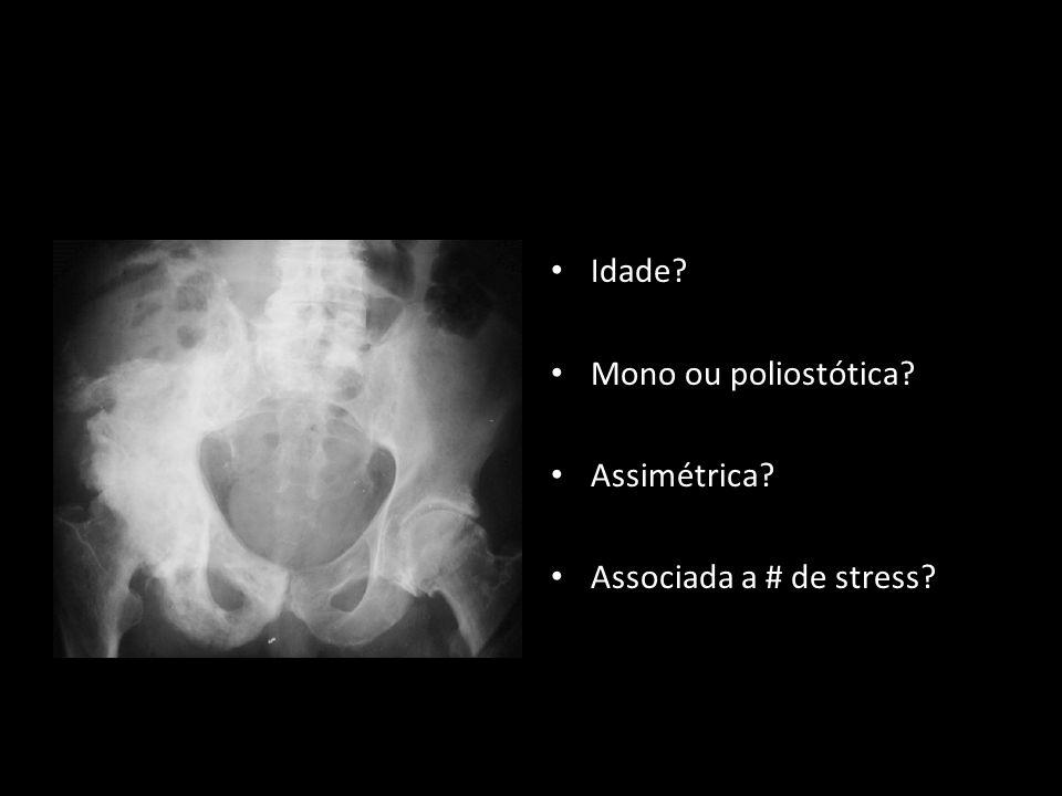 Idade Mono ou poliostótica Assimétrica Associada a # de stress
