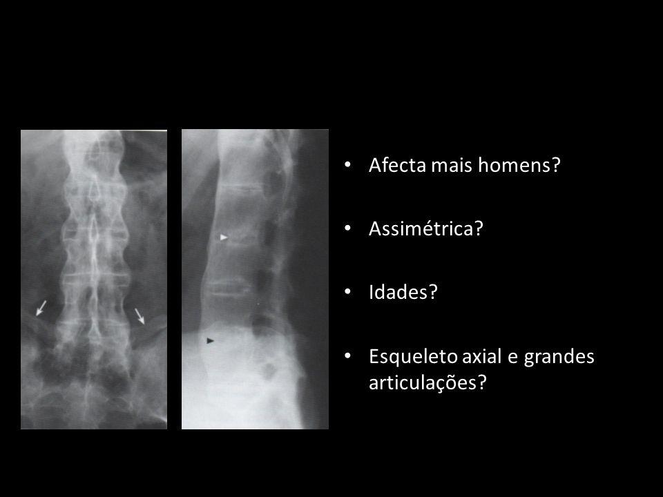 Esqueleto axial e grandes articulações