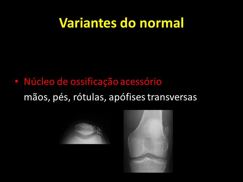 Variantes do normal Núcleo de ossificação acessório
