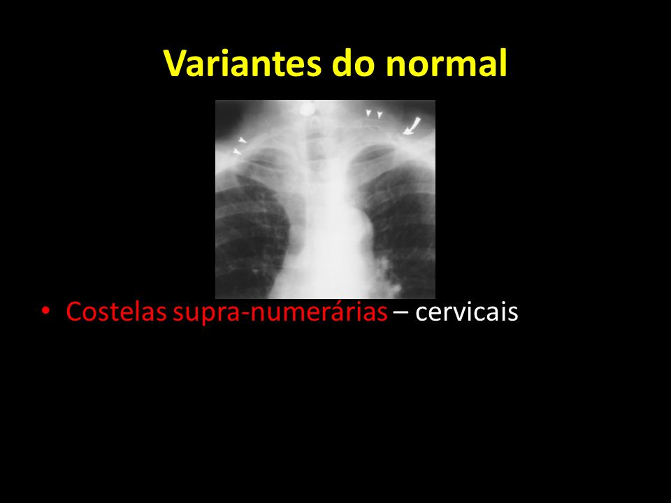 Variantes do normal Costelas supra-numerárias – cervicais