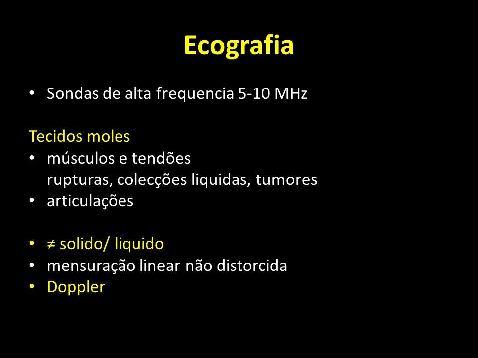 Ecografia Sondas de alta frequencia 5-10 MHz Tecidos moles