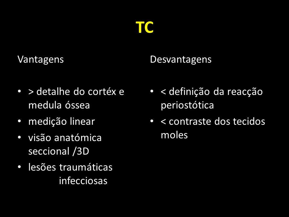 TC Vantagens > detalhe do cortéx e medula óssea medição linear