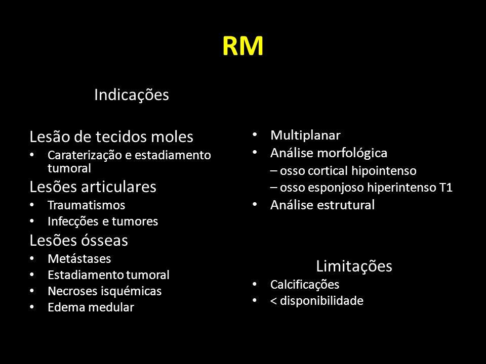 RM Indicações Lesão de tecidos moles Lesões articulares Lesões ósseas