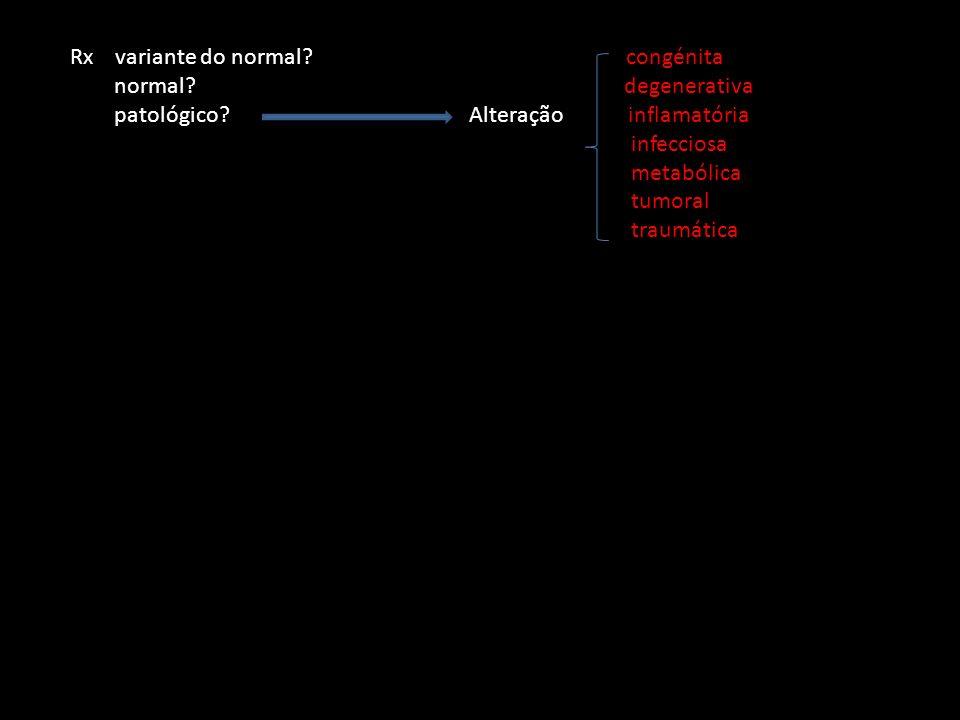 Rx variante do normal congénita
