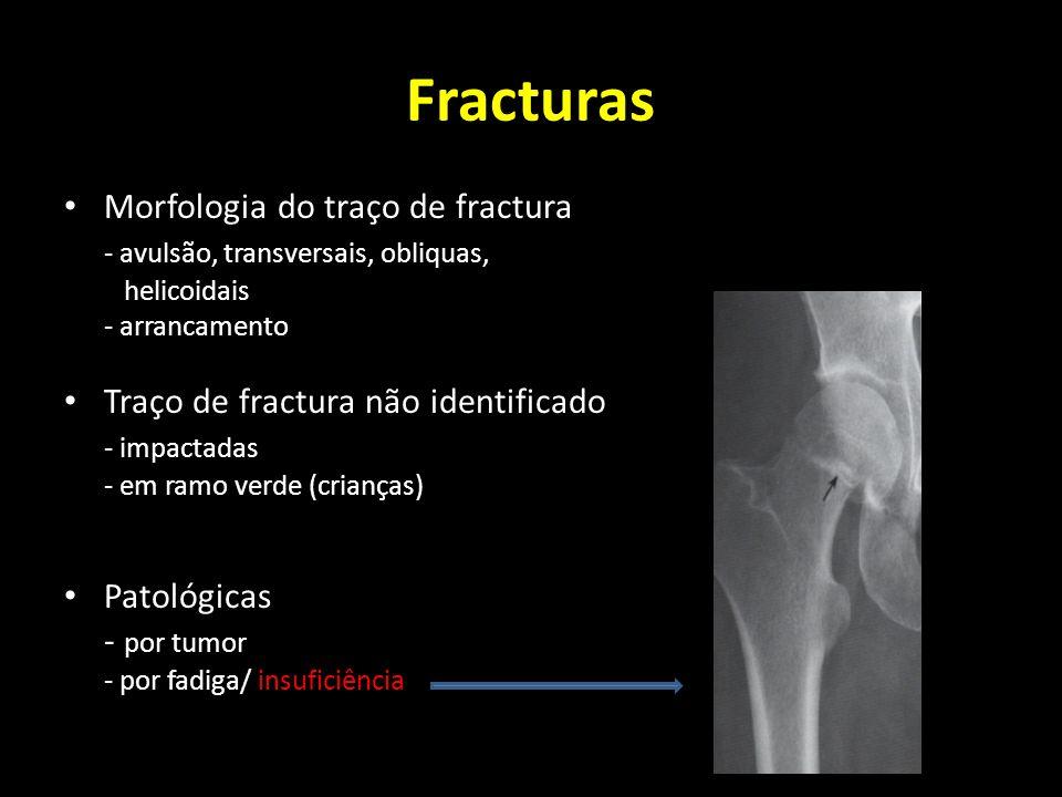 Fracturas Morfologia do traço de fractura