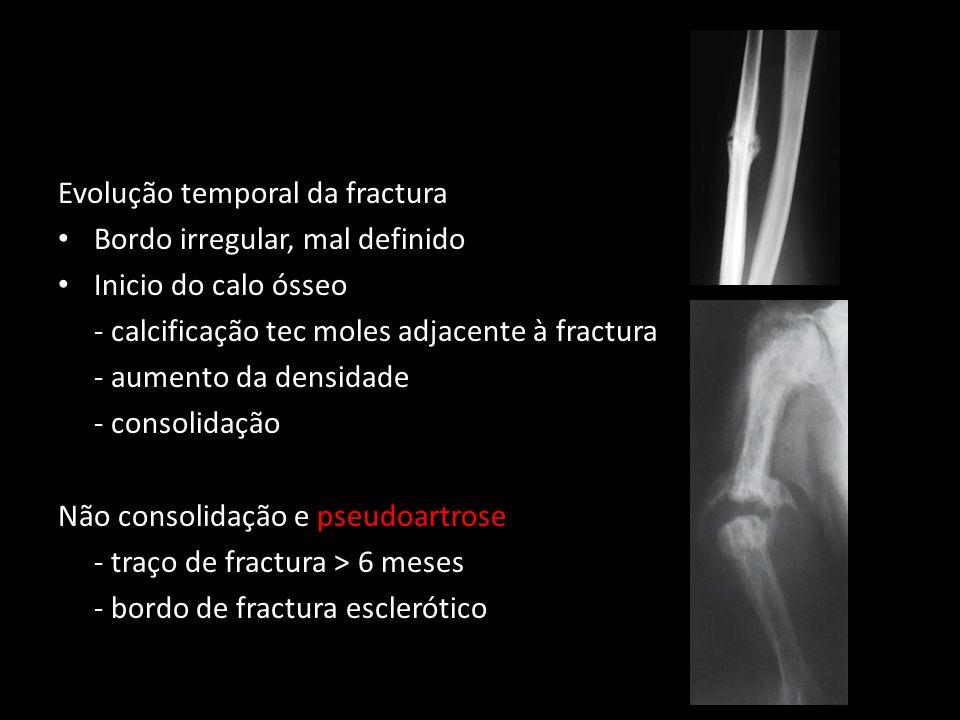 Evolução temporal da fractura