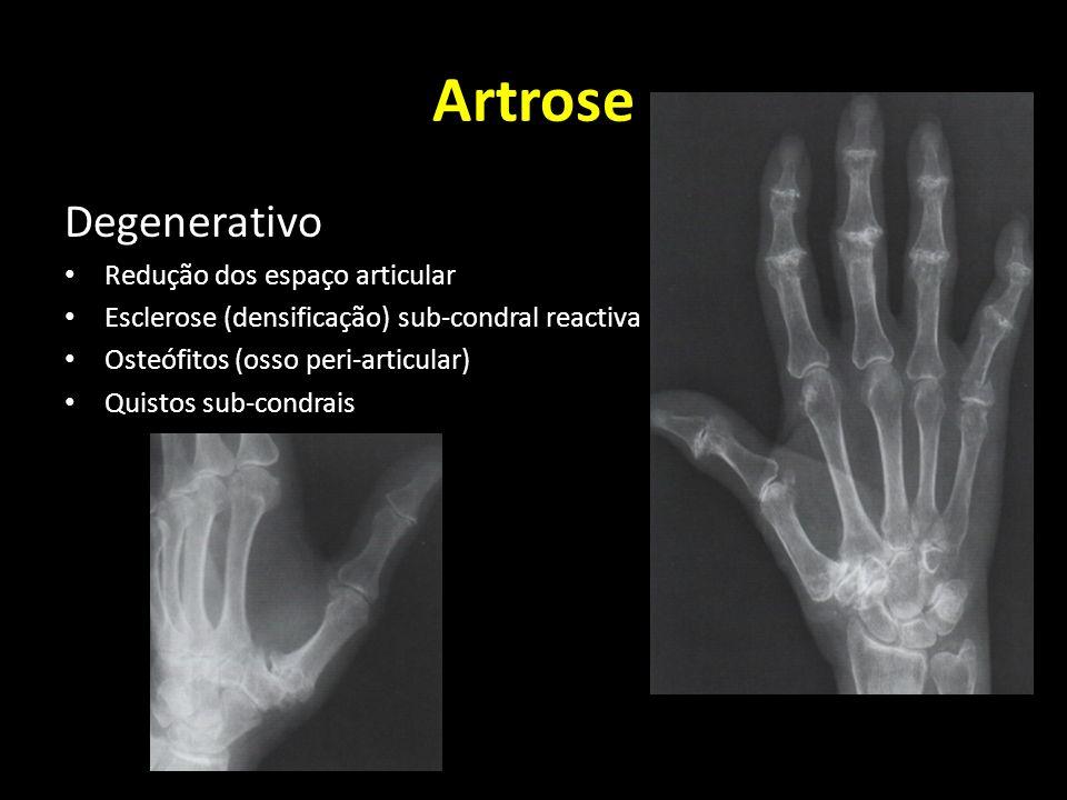 Artrose Degenerativo Redução dos espaço articular