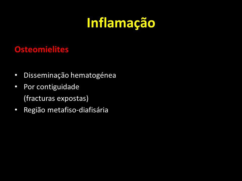 Inflamação Osteomielites Disseminação hematogénea Por contiguidade