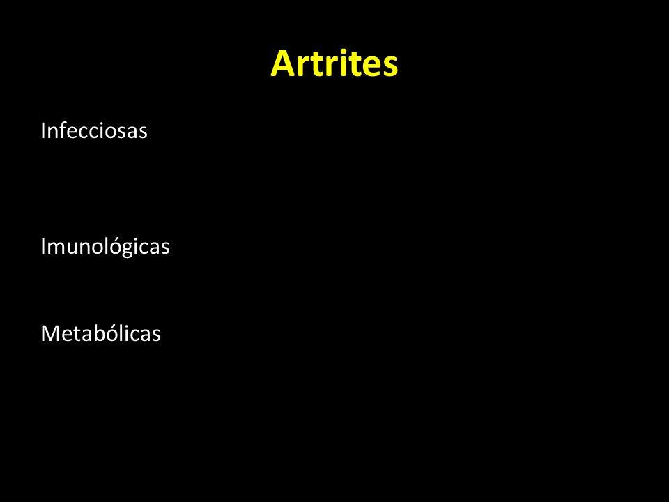 Artrites Infecciosas Piogénicas Tuberculosa Imunológicas