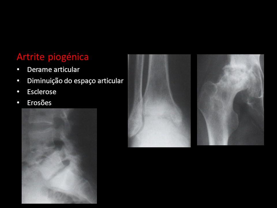 Artrite piogénica Derame articular Diminuição do espaço articular