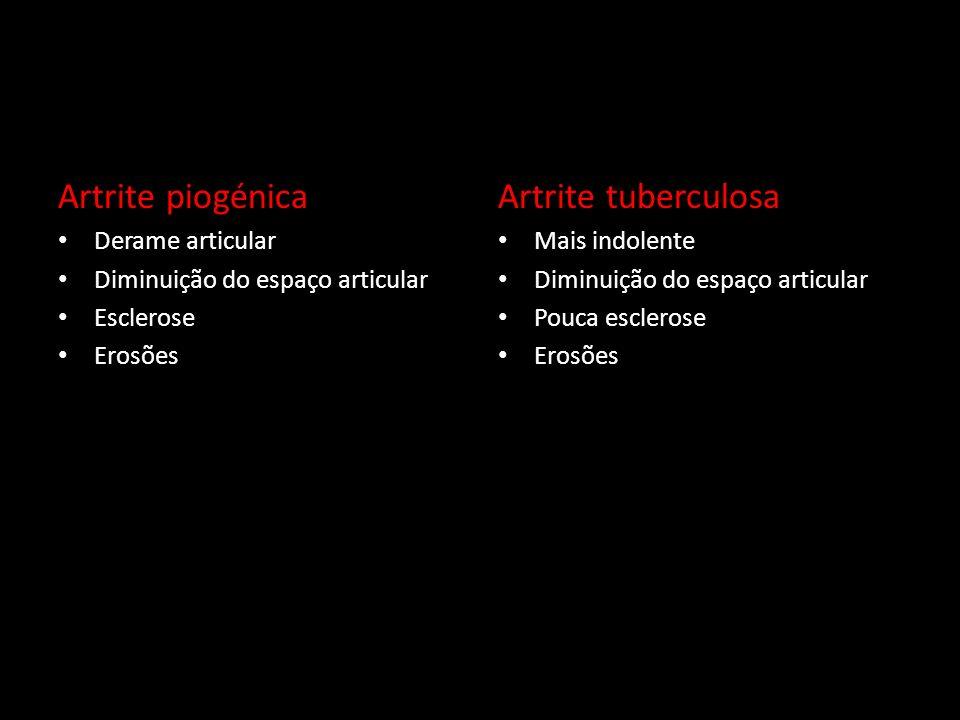 Artrite piogénica Artrite tuberculosa Derame articular