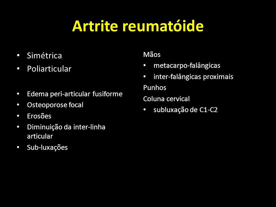 Artrite reumatóide Simétrica Poliarticular Mãos metacarpo-falângicas