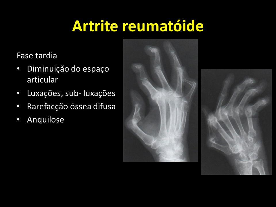 Artrite reumatóide Fase tardia Diminuição do espaço articular