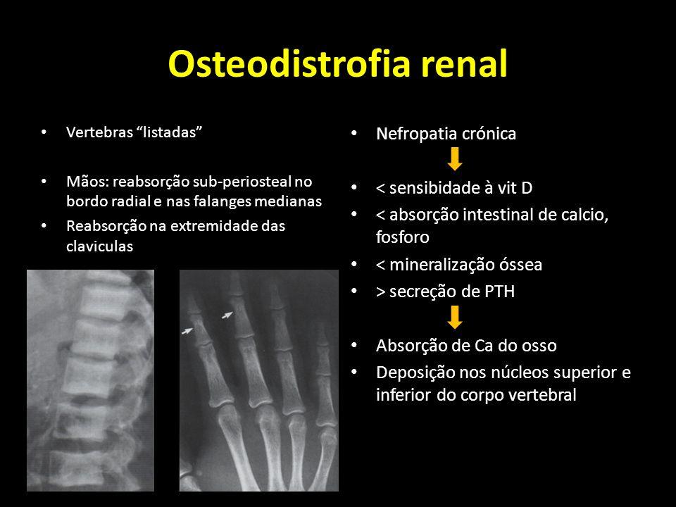 Osteodistrofia renal Nefropatia crónica < sensibidade à vit D
